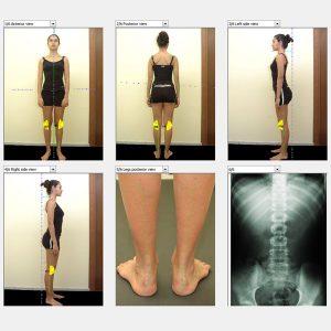 Analiza postawy ciała